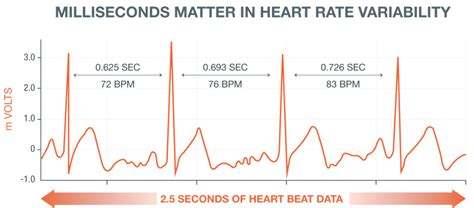 Milliseconds make the difference in heart health - Biotricity