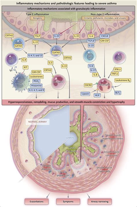 Severe and Difficult-to-Treat Asthma in Adults   NEJM